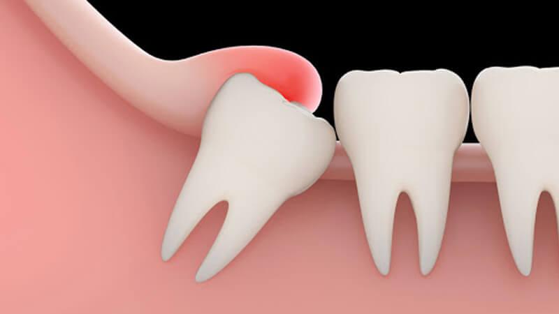 کشیدن دندان عقل - مشکلات دندان عقل نهفته