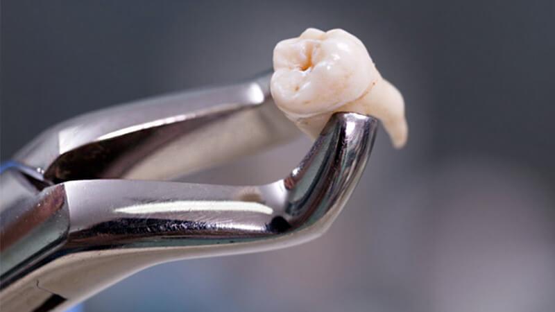 کشیدن دندان عقل - آنچه میتوانید انتظار داشته باشید