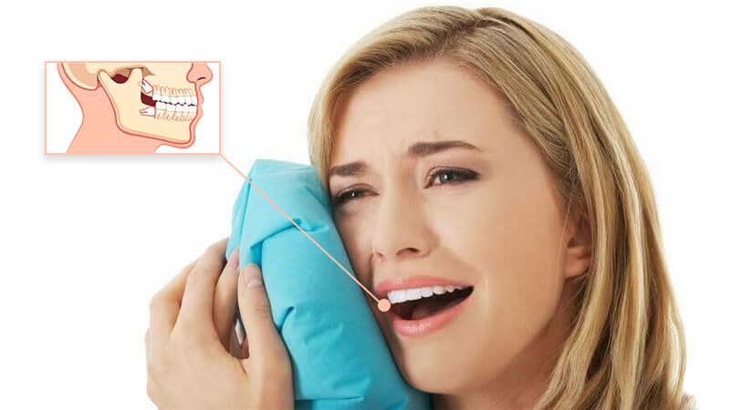 کشیدن دندان عقل - چرا این کار را انجام میدهید