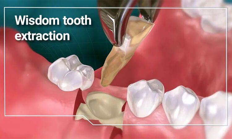 کشیدن دندان عقل؛ علل، خطرات و نکات جراحی آن