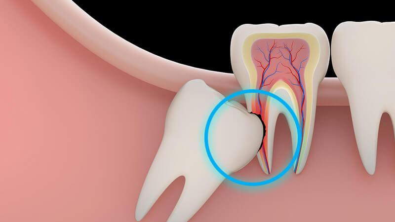کشیدن دندان عقل - خطرات