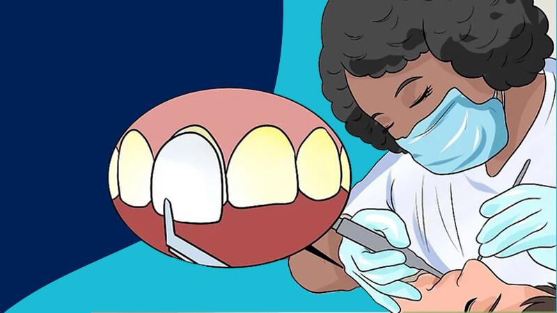 تقویت مینای دندان - ونیرها را روی دندانهای خود را بچسبانید.