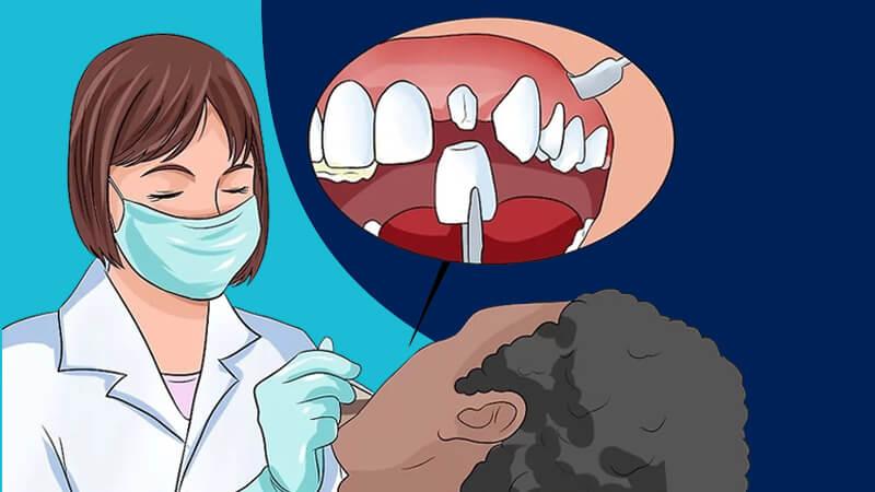 تقویت مینای دندان - در مورد گزینههای ترمیم با دندانپزشک مشورت کنید.