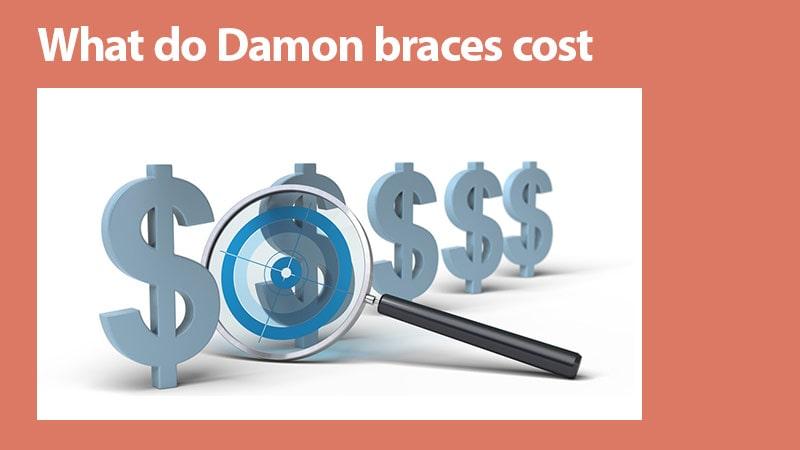 ارتودنسی دیمون - هزینهی بریسهای دیمون چقدر است؟