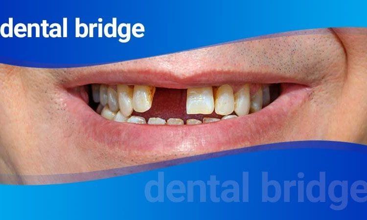 بریج دندانها