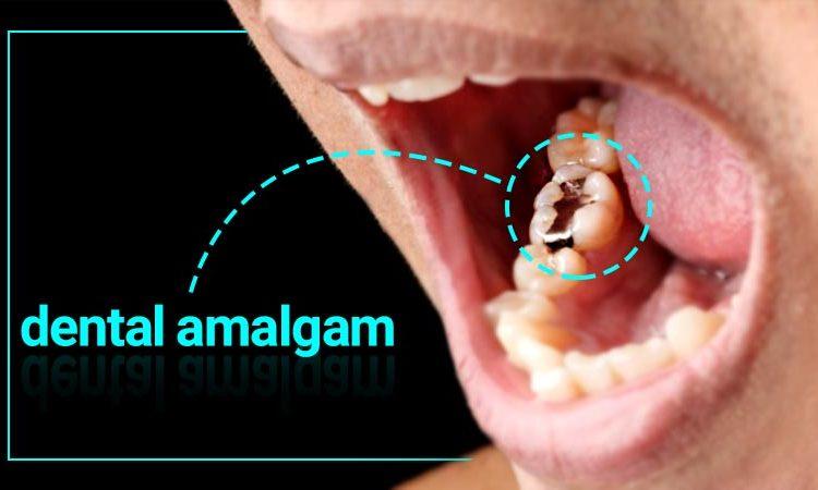 آمالگام چیست؛ مزایا، معایب و ویژگیهای آمالگام دندانی