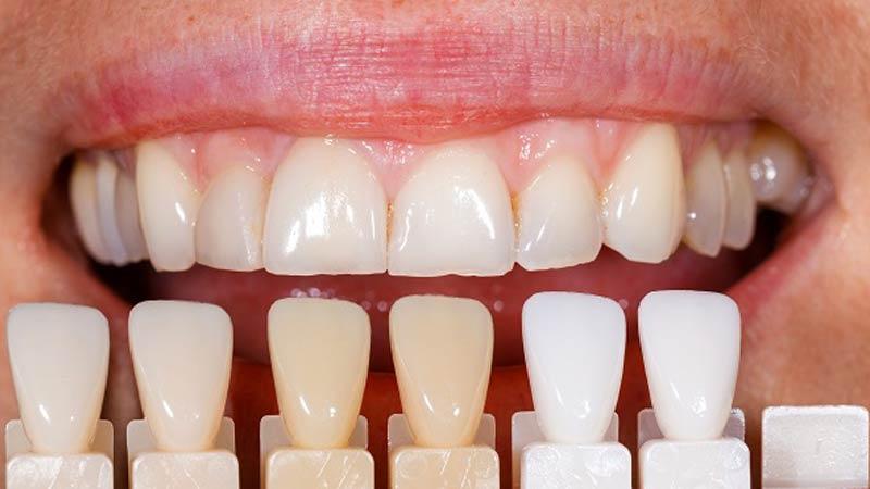 در طی روند ساخت یک بریج دندان سنتی چه اتفاقاتی میافتد؟ - بریج دندان