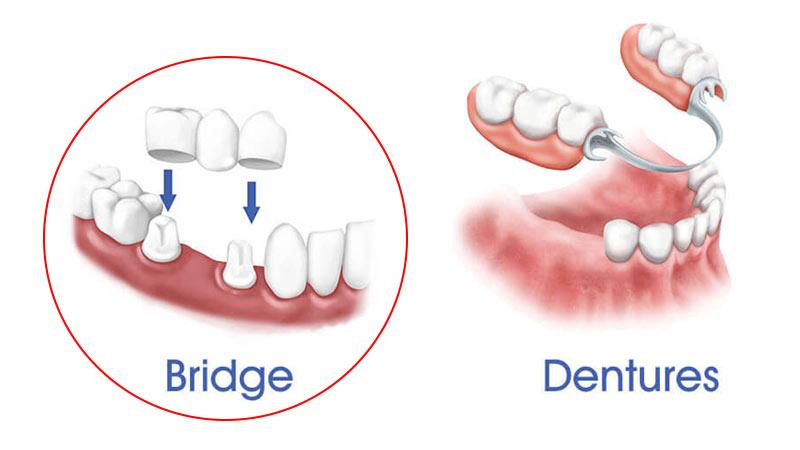 بریج دندان چه مزایایی دارد؟