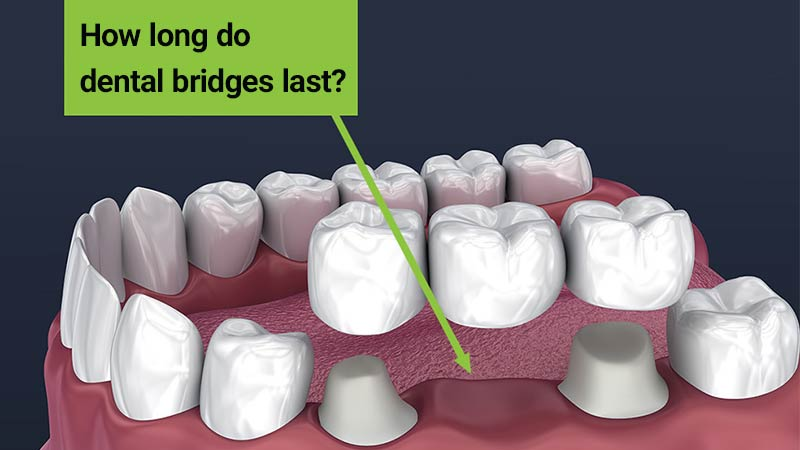 بریجهای دندان چه مدت دوام میآورند؟ - بریج دندان