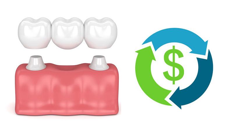 هزینهی بریج دندان چقدر است؟