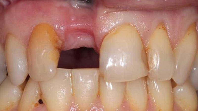 چه کسانی به بریج دندان نیاز دارند؟