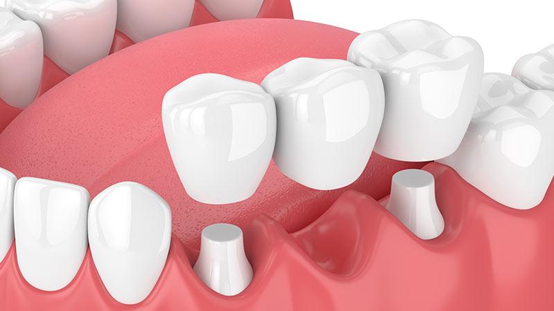 بریج دندان چگونه است؟