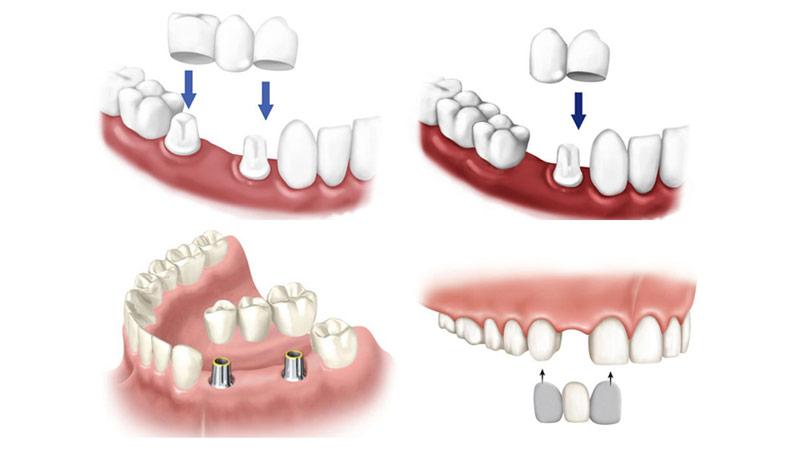 معرفی انواع بریجهای دندان - بریج دندان