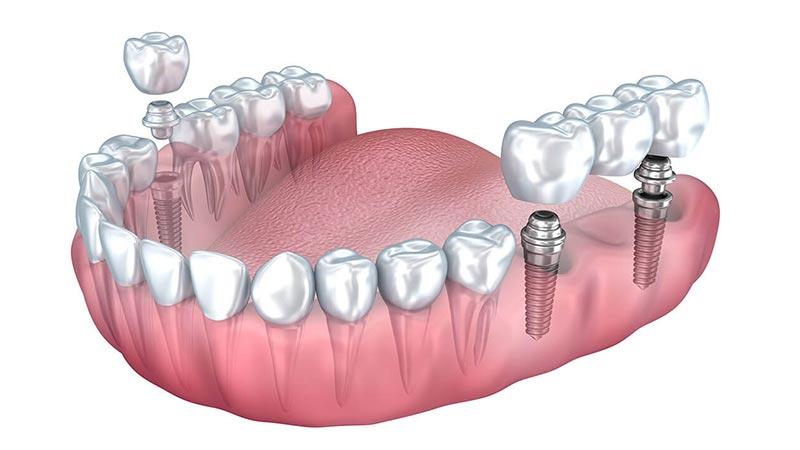 به جای بریج دندانی از چه چیزی میتوانید استفاده کنید؟ - بریج دندان
