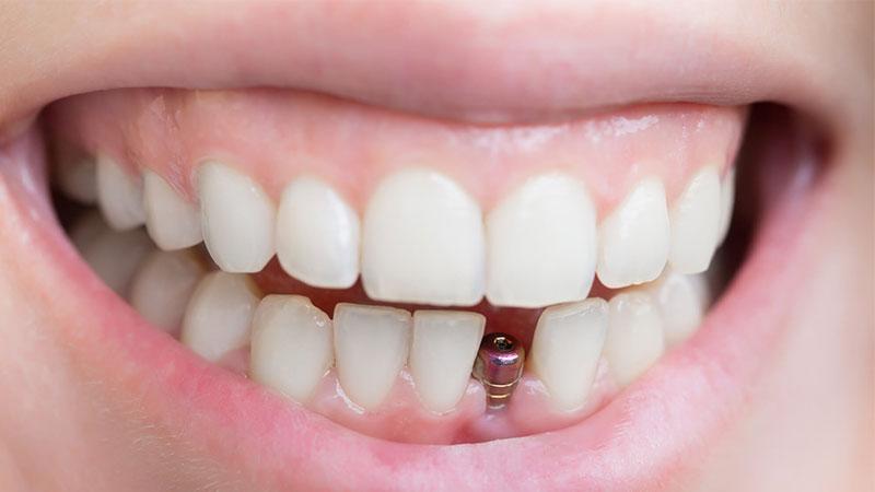 آیا به ایمپلنتهای دندانی نیاز دارید؟ -بریج دندان