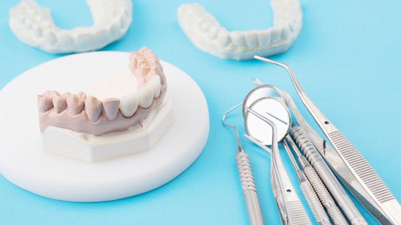 بریجهای دندان چقدر رواج دارند؟ - بریج دندان
