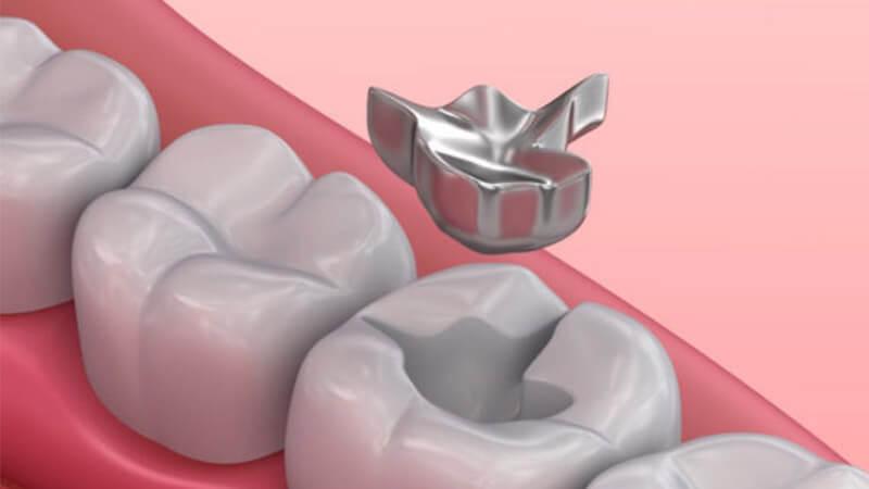 آیا آمالگام دندانی ایمن است؟ - آمالگام چیست