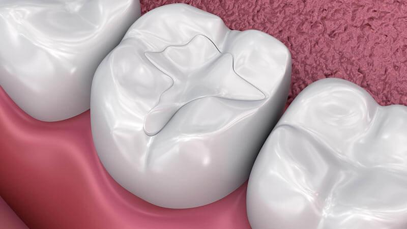 از چه مواد دیگری میتوان برای پر کردن دندان استفاده کرد و فواید و خطرات آنها چیست؟ - آمالگام چیست