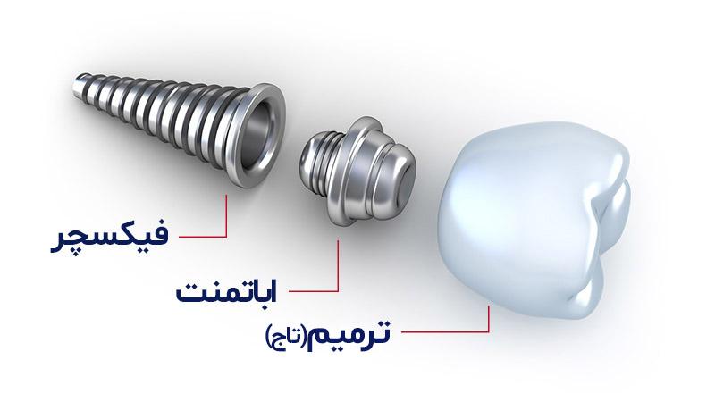 آناتومی ایمپلنت دندان - فیکسچر چیست