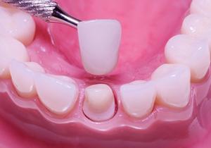 آماده سازی دندان برای روکش دندان