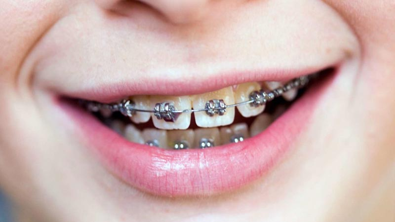 بریسها - فاصله بین دندانها
