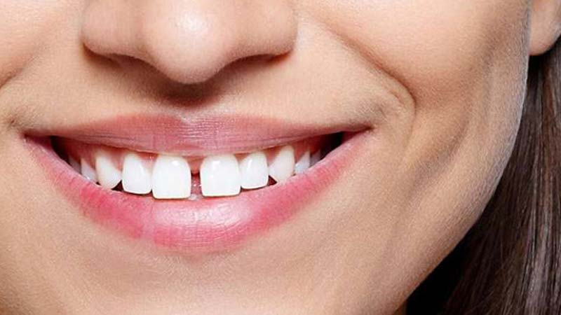 علل دیاستما - فاصله بین دندانها