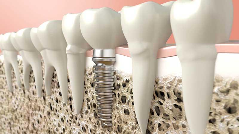 چگونه میتوانم برای پیوند استخوان دندان آماده شوم؟