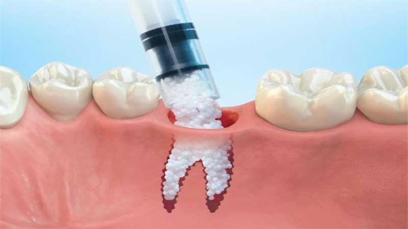 روند پیوند استخوان دندان چگونه انجام میشود؟