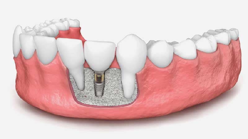 پیوند استخوان دندان چقدر دردناک است؟