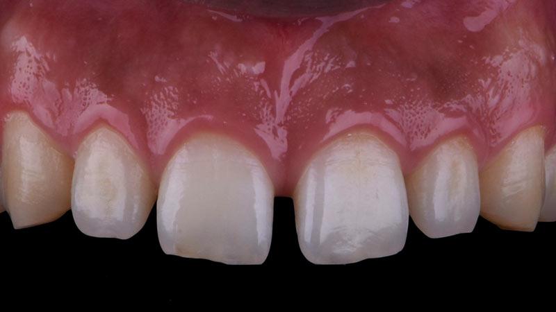 علائم فاصله بین دندانها