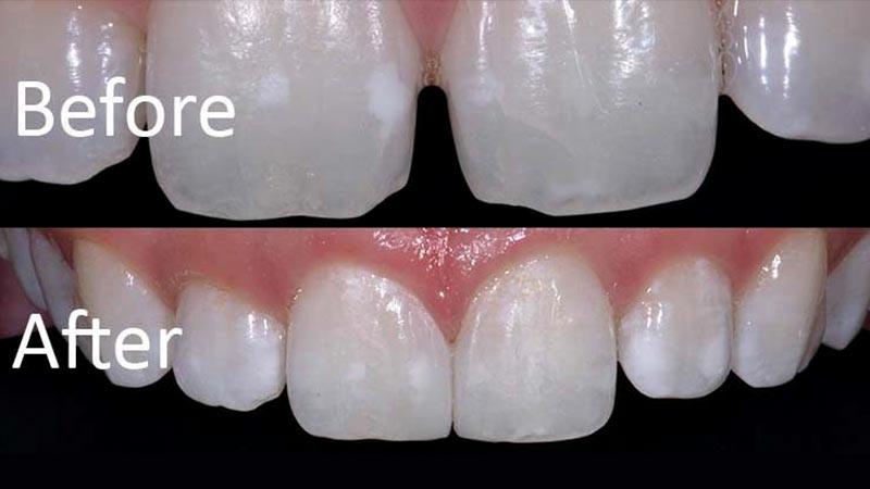 عادات - فاصله بین دندانها