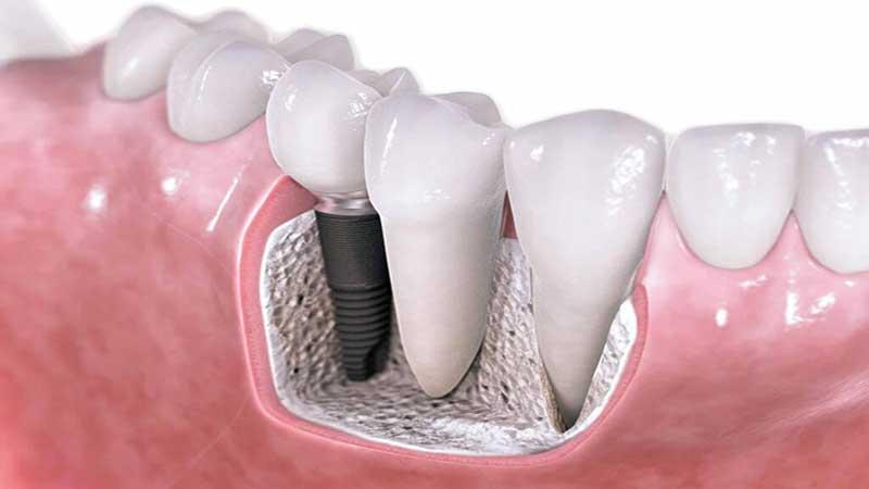 انواع پیوندهای استخوان دندان - پیوند استخوان