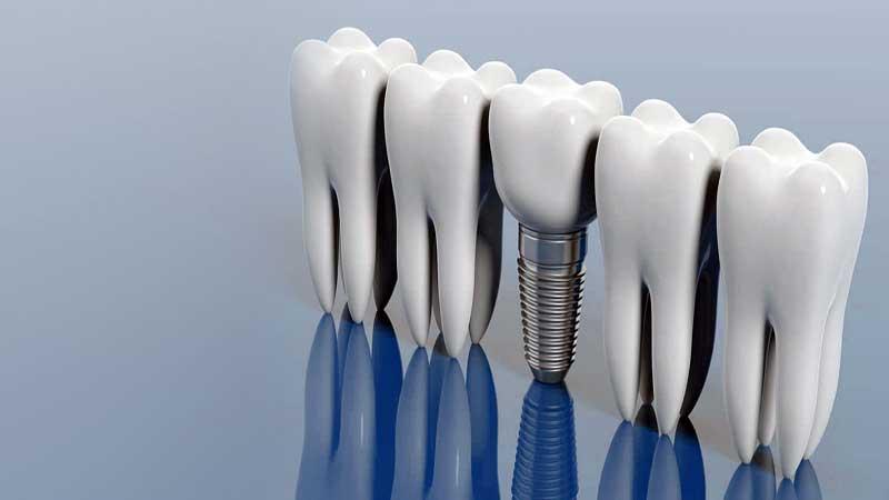 آیا شما آمادهی مراقبت از ایمپلنت دندان هستید؟