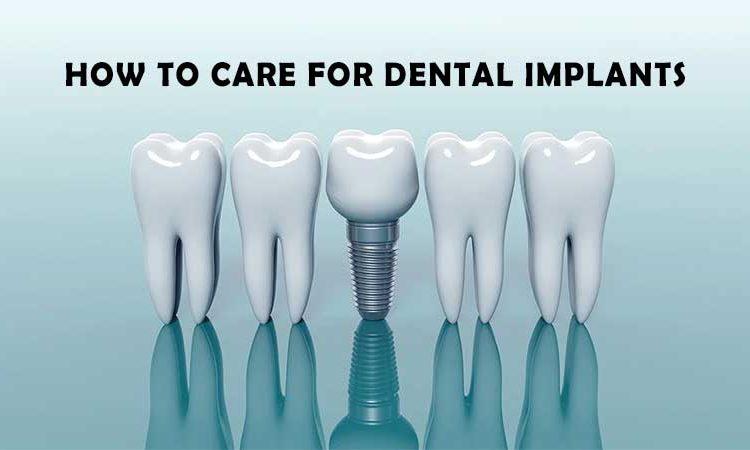 نحوه مراقبت از ایمپلنت دندان