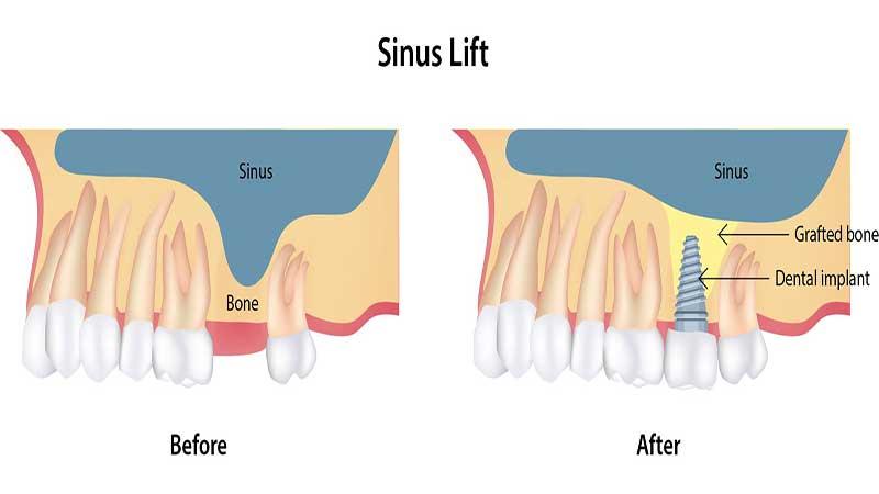 قبل از جراحی سینوس لیفت چه اتفاقی میافتد؟