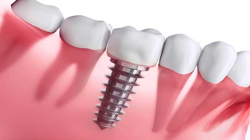آیا میتوان یک ایمپلنت دندانِ عفونت کرده را بهبود بخشید؟ - عفونت ایمپلنت دندان