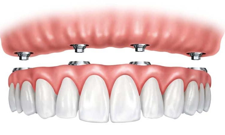 دندان مصنوعی ثابت بر پایه ایمپلنت