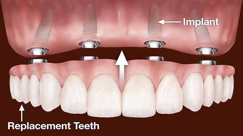 این فرآیند چگونه کار میکند - دندان مصنوعی ثابت بر پایه ایمپلنت