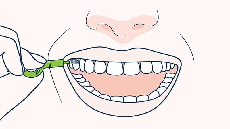 مسواکهای بین دندانی - مسواک مخصوص ایمپلنت دندان