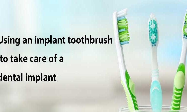 به کارگیری مسواک مخصوص ایمپلنت برای مراقبت از ایمپلنت دندان