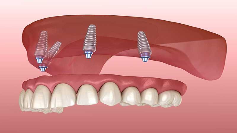 چه چیزی انتظار میرود - دندان مصنوعی ثابت بر پایه ایمپلنت