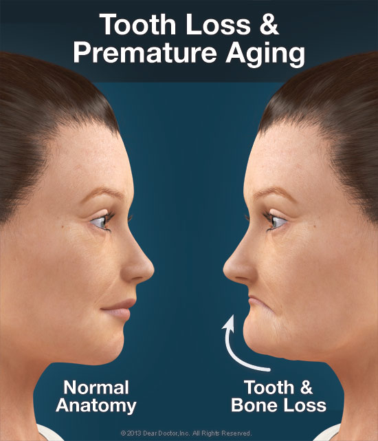 از دست دادن دندان و پیری زودرس - دندان مصنوعی ثابت بر پایه ایمپلنت
