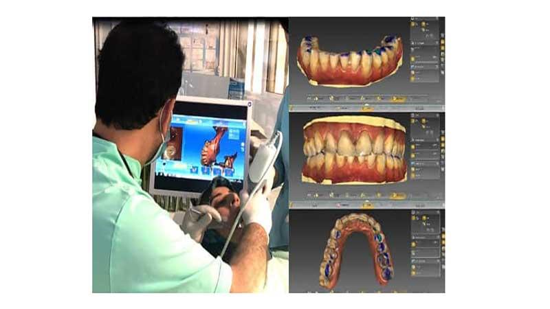 مزایای ایمپلنتهای دندانپزشکی دیجیتال