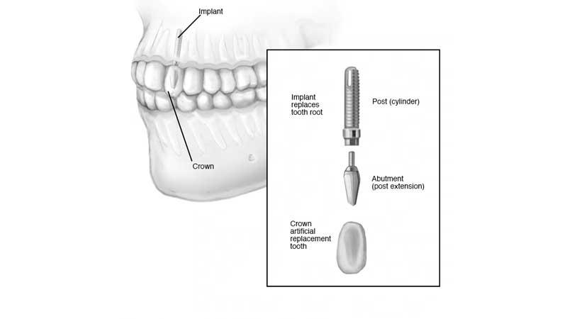 ایمپلنتهای دندانی چگونه کار میکنند؟
