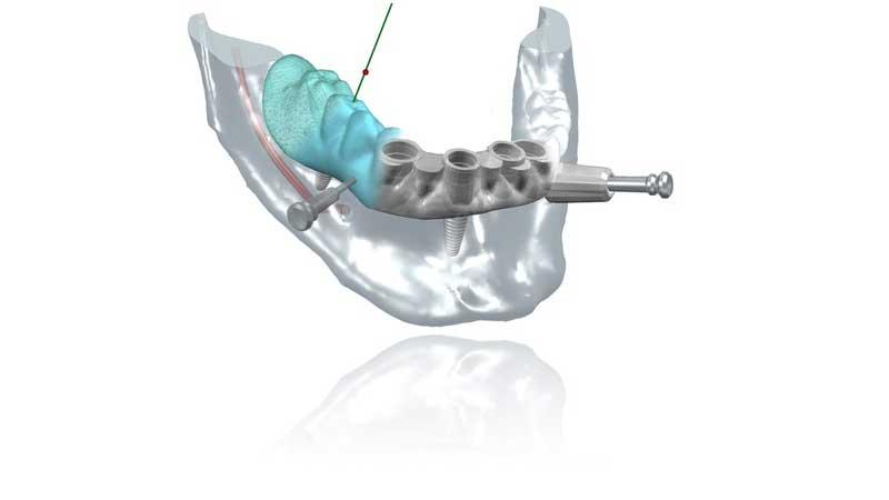 آیا میزان درد آن کمتر از سایر جراحیهای ایمپلنت دندان است؟ - ایمپلنت دیجیتال