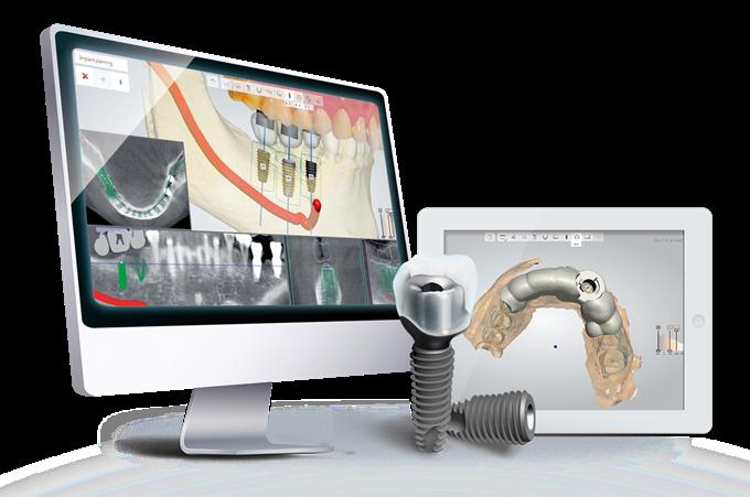 جراحی ایمپلنت دیجیتال چیست؟ - ایمپلنت دیجیتال