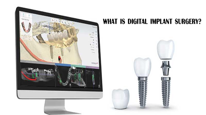 جراحی ایمپلنت دیجیتال چیست؛مزایای کاشت دندانهای دیجیتال