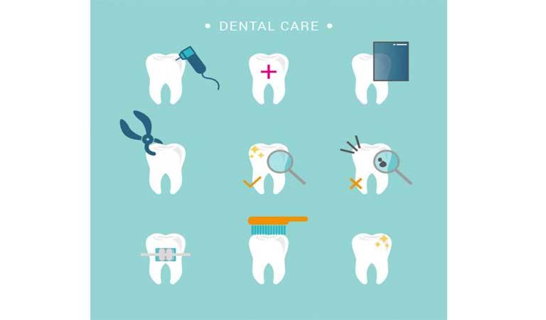 تمیز کردن و مراقبت از ونیرهای دندانی - ونیر دندان