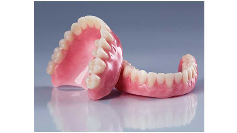 مشکلات دندان مصنوعی - انتقال از دندان مصنوعی به ایمپلنت