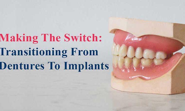 ایجاد تغییرات: انتقال از دندان مصنوعی به ایمپلنت